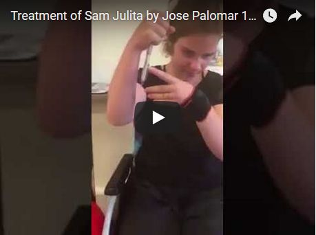 Treatment of Sam Julita by Jose Palomar