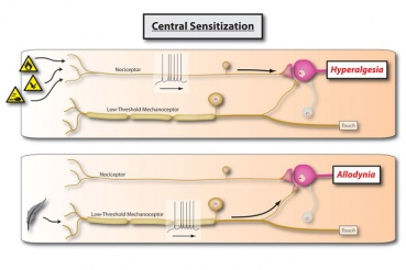Central sensitization: Implications for the diagnosis and treatment of pain